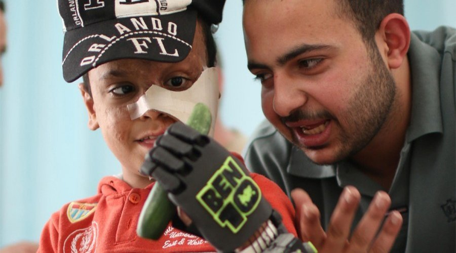 A boy uses prosthetic arm provided by ROW. Image via Refugee Open Ware.